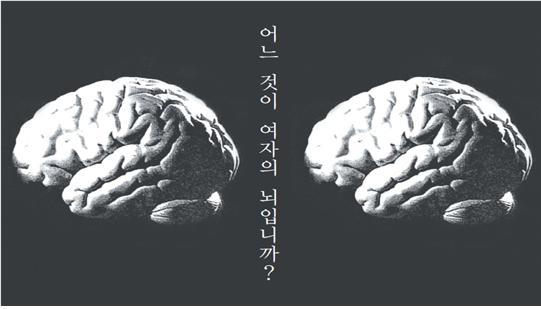 뇌사진.jpg